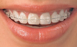 Ceramic (Clear) Braces