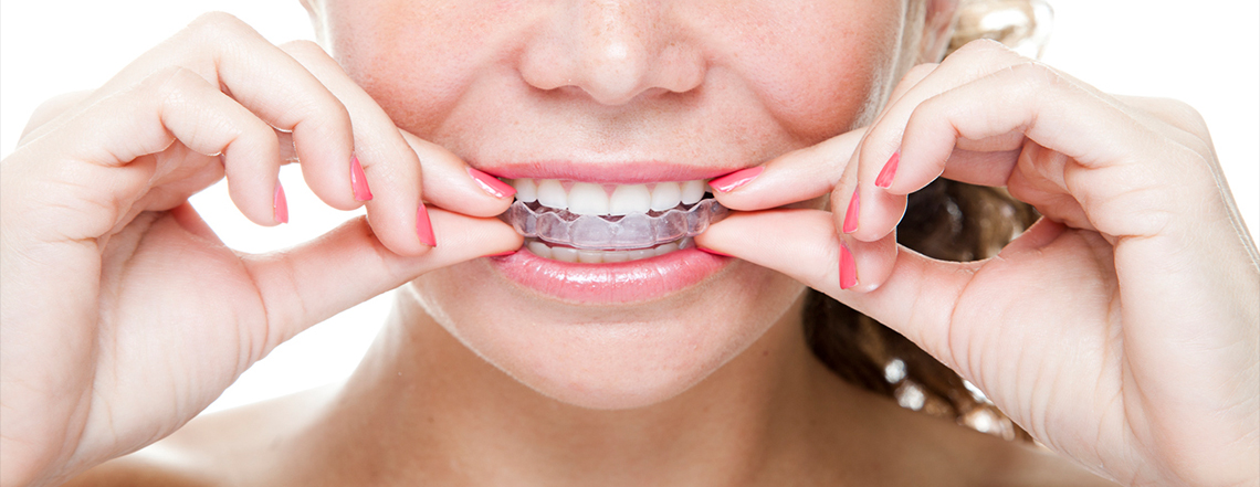 About Invisalign